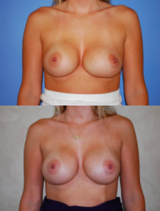 Breast Revision Patient by Dr. Lee